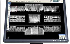 Digital Dental Xrays Florida