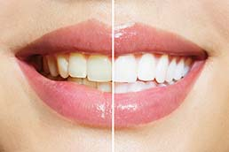 Teeth Whitening Dentist The Villages FL